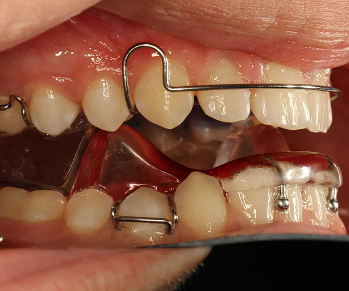 functional orthodontics Dr david - bolton, ma dentist - alf orthodontics alf (advanced light force) is  a non-traditional way to address the underlying causes for crooked teeth alf is.