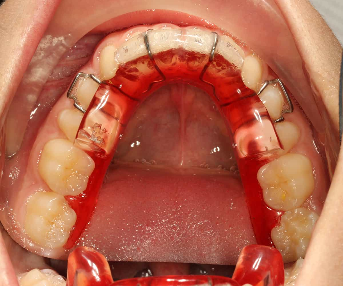 functional appliances in orthodontics Priyankar panigrahi and varadarajan vineeth (2009) biomechanical effects of  fixed functional appliance on craniofacial structures the angle orthodontist:.