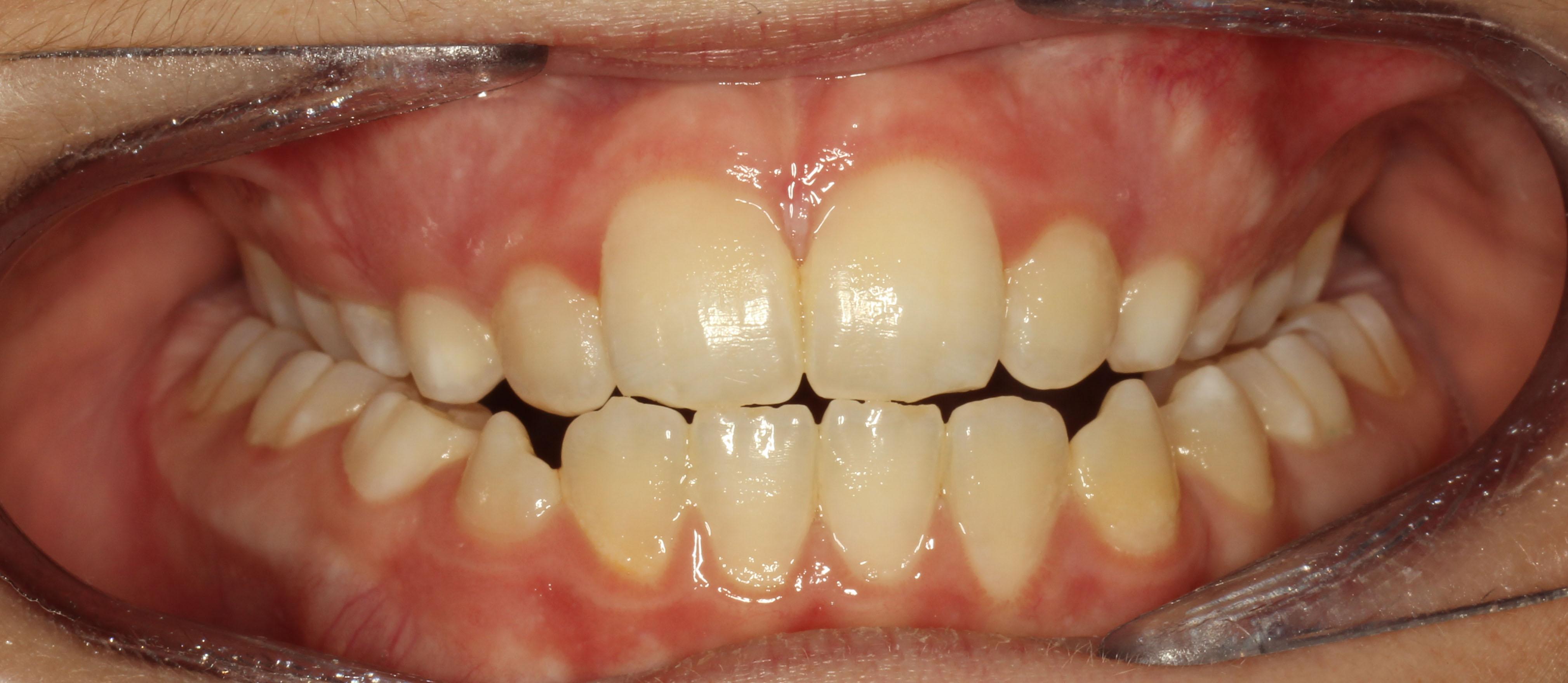 Problems Inline Orthodontics